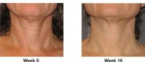 Perles à effet lift de Khanya - concentré pour le visage et le décolleté, contre les signes du vieillissement cutané